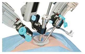 Single Incision Gallbladder Removal